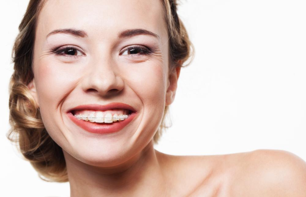 Adult Orthodontics Metairie LA
