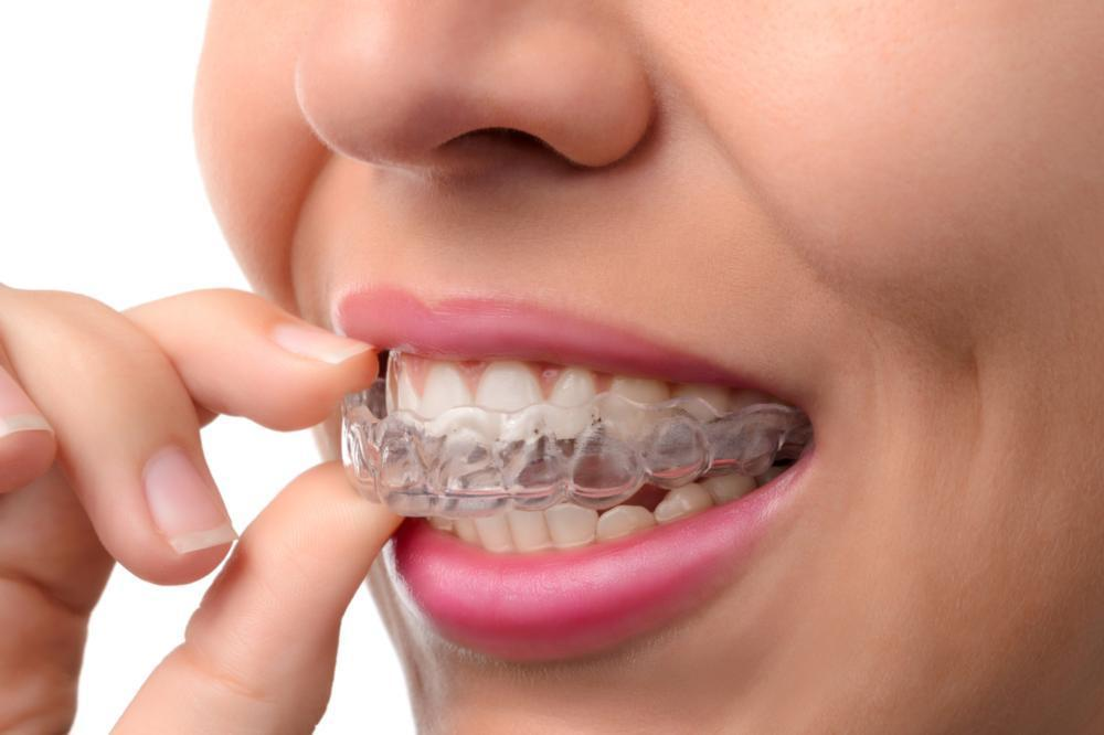 invisalign clear braces | metairie la