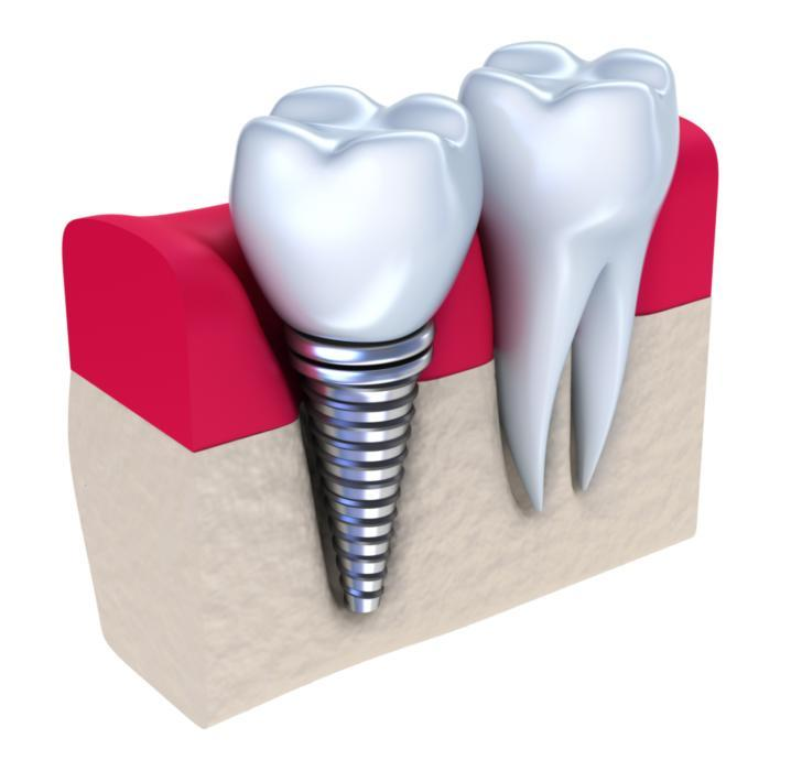 Dental Implants Metairie LA