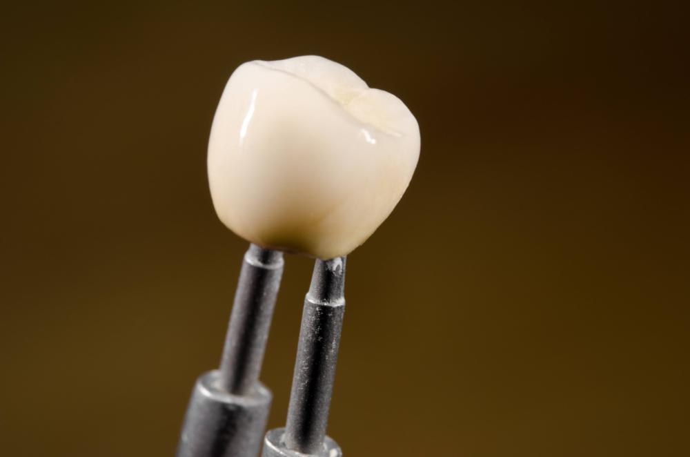 Dental Crowns in Metairie LA | A Dental Crown Being Created