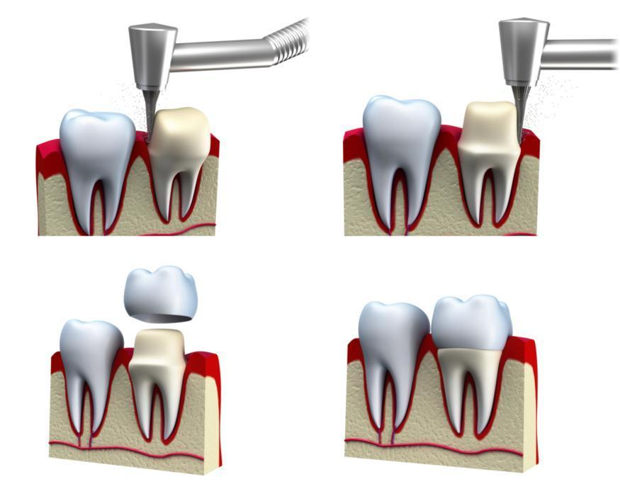 dental implants in metairie
