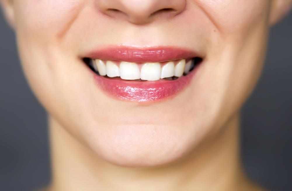 Dental Sealants Metairie LA | A photo of a smile