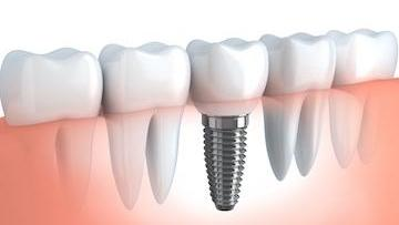 dental implant picture | dental implants metairie la