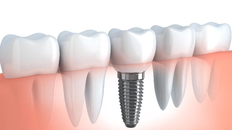 a diagram of a dental implant | metairie la dental implants