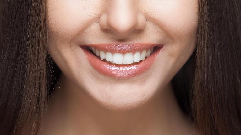 A close up of a woman's smile | Metairie, LA teeth whitening
