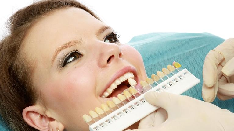 professional teeth whitening metairie la