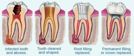 a cross section of the process of a root canal | root canals metairie la