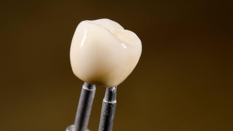 A dental crown being created | dental crowns in metairie la