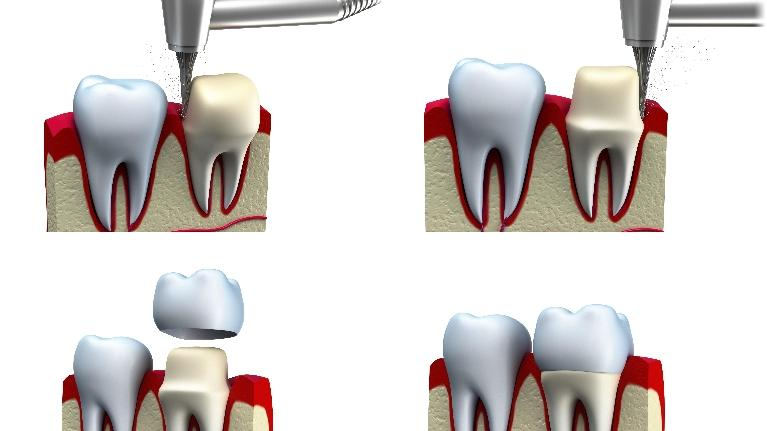 diagram of a dental crown | metairie la dental crowns | what is a crown?