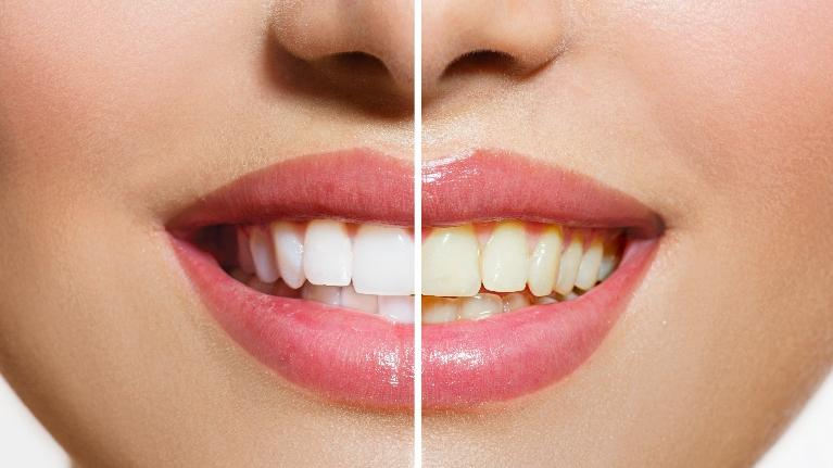 A before and after image from teeth whitening | Teeth Whitening Metairie LA