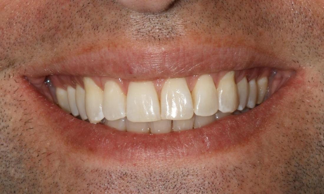 invisalign in metairie LA