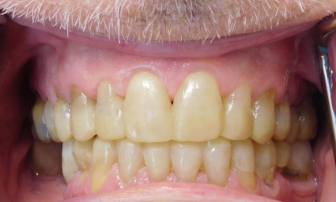 teeth repair with composite resin metairie la