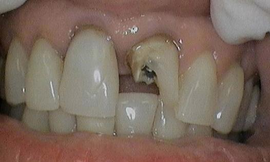 porcelain crowns metairie la