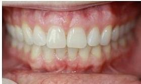 Before and After Invisalign, We Straightened This Patient's Bottom Teeth