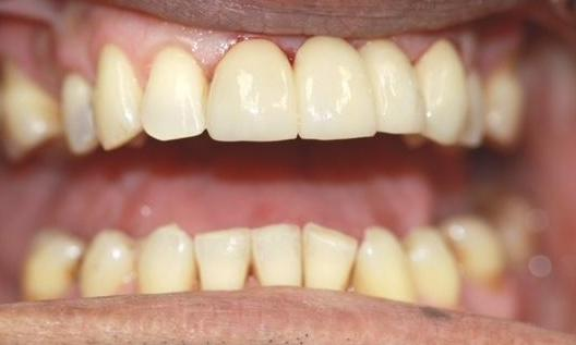 A Bridge and Cleaning Brightened This Patient's Smile