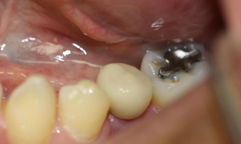 CEREC-Implant-Crown-Placed-In-Our-Dental-Office-Made-By-Our-CEREC-Machine-After-Image