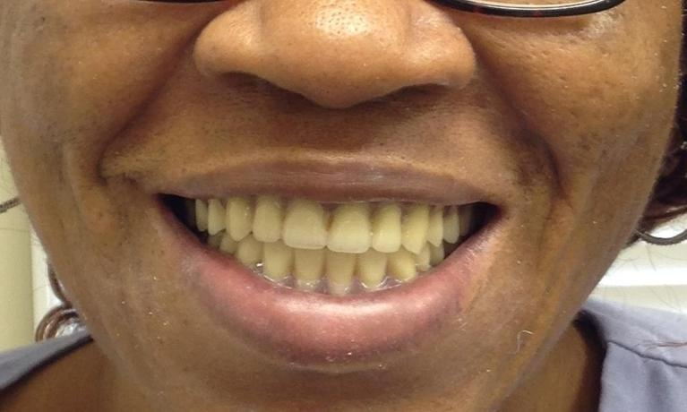 Immediate-Denture-After-Image