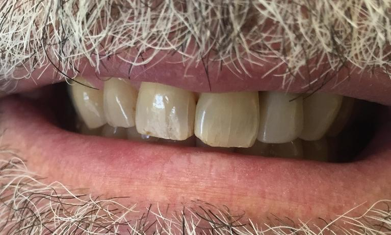 We-Replaced-This-Patient-s-Missing-Tooth-After-Image
