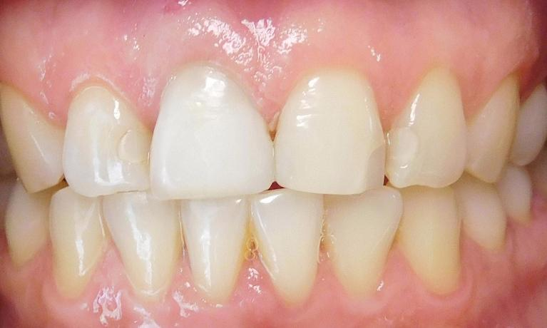 Root-Canal-Internal-Bleaching-and-Tooth-Colored-Filling-After-Image