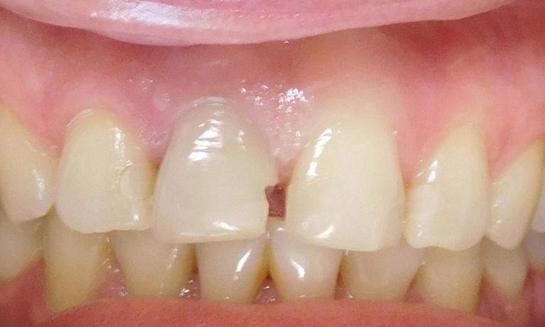 Root-Canal-Internal-Bleaching-and-Tooth-Colored-Filling-Before-Image