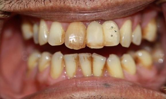 A-Dental-Bridge-and-Teeth-Cleaning-Brightened-This-Patient-s-Smile-Before-Image
