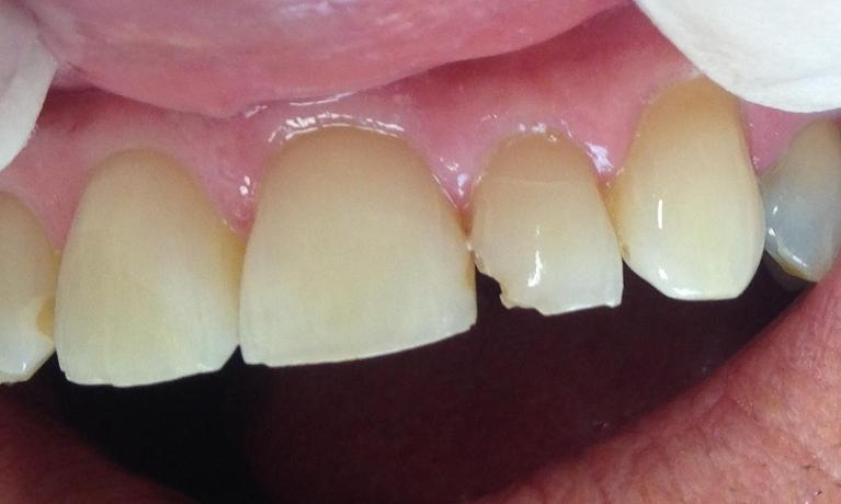 tooth repaired with composite filling | metairie la