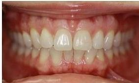 Before-and-After-Invisalign-We-Straightened-This-Patient-s-Bottom-Teeth-Before-Image